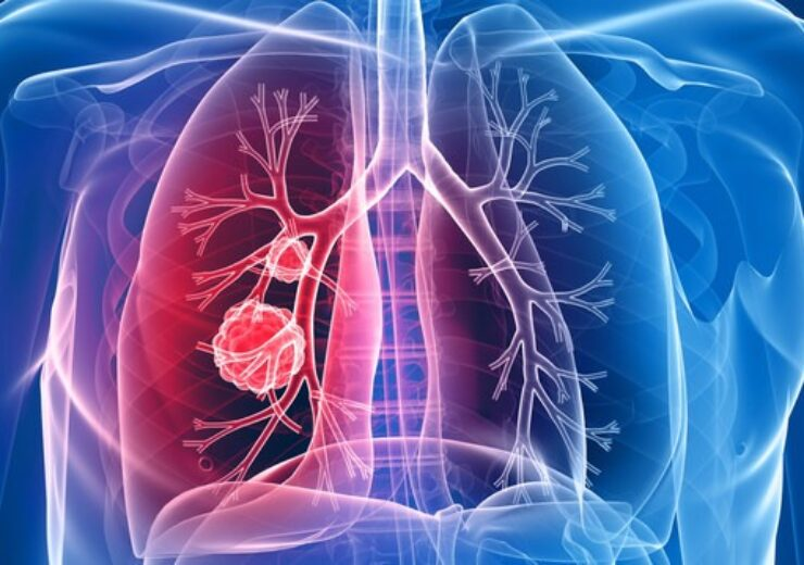 Chest-Lung-Cancer