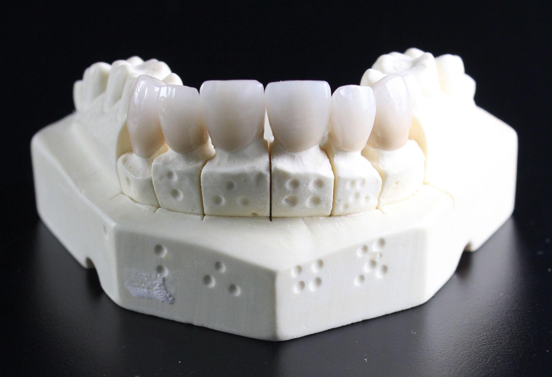 ceramics dental applications