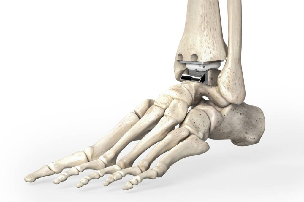 Stryker to sell ankle prostheses business to get green light for Wright Medical acquisition