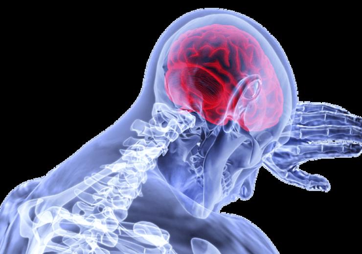 Human neuro