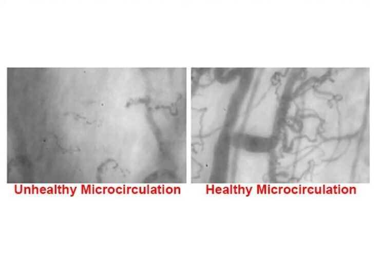 Microvascular Health Solutions