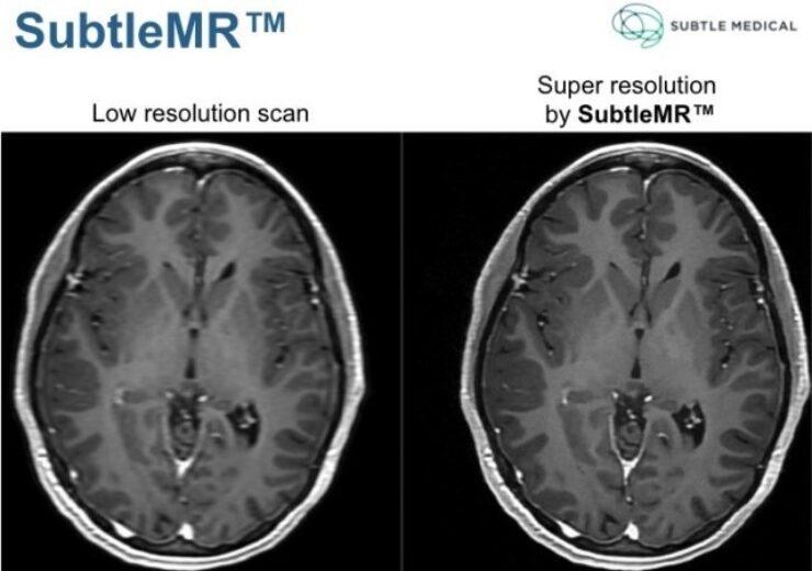 SubtleMR demonstrates super resolution on accelerated scan protocols.