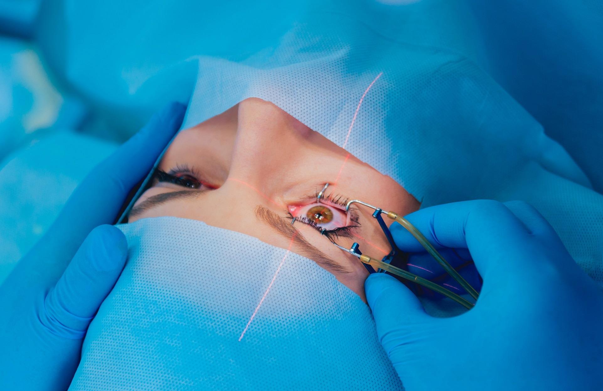 femto lasers ophthalmology