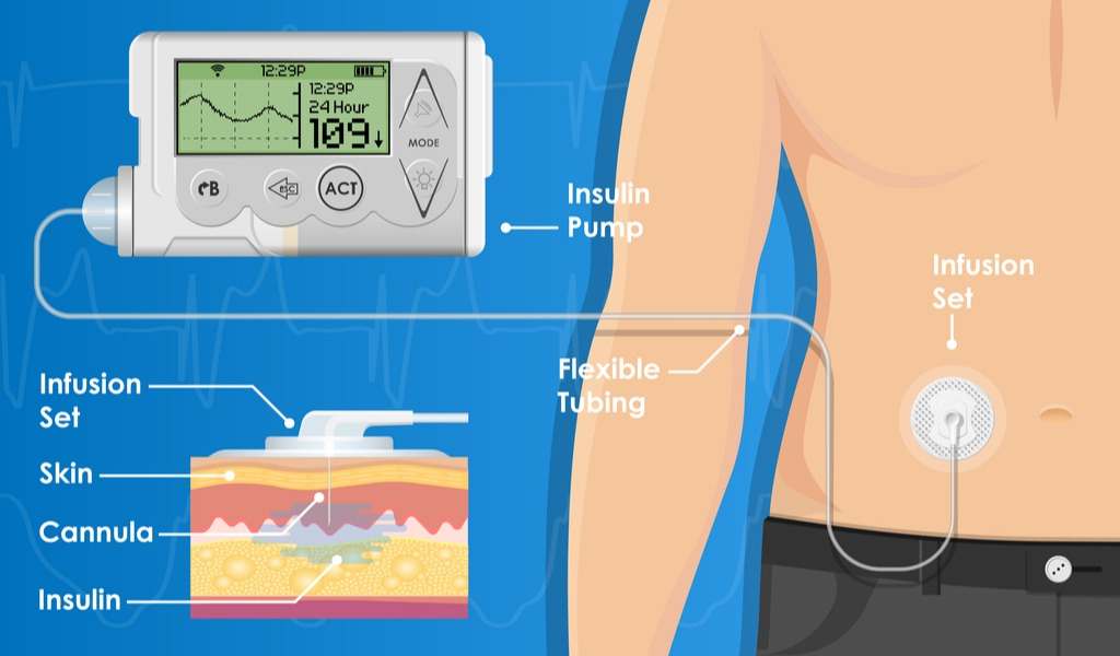 medical devices for diabetes