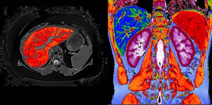 Covid-19 liver damage