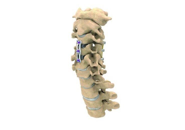 NuVasive launches new C360 cervical spine portfolio