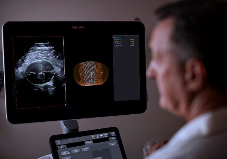 Philips launches new software for surveillance of abdominal aortic aneurysms