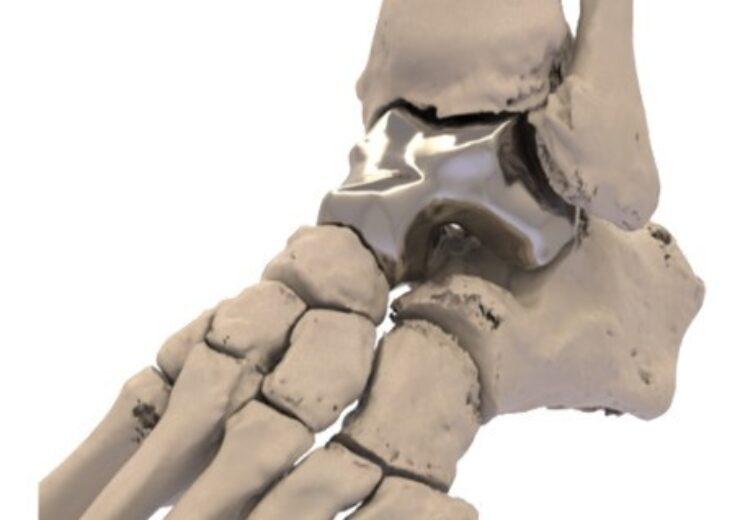 FDA approves Additive Orthopaedics' implant to treat avascular necrosis of talus