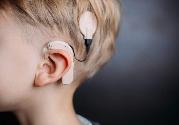 Cochlear,Implant,On,The,Boy's,Head.,Hearing,Aid.med-el.,Copy,Space