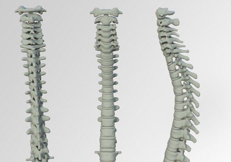 spine-3220105_640(2)