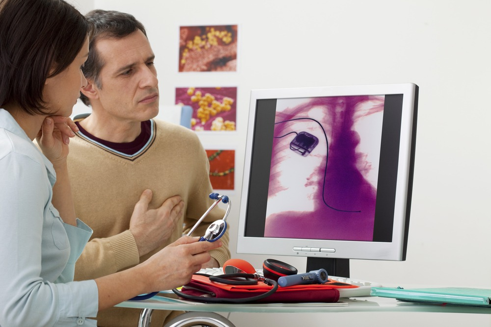 New study reveals the rate of depression and anxiety after ICD implantation