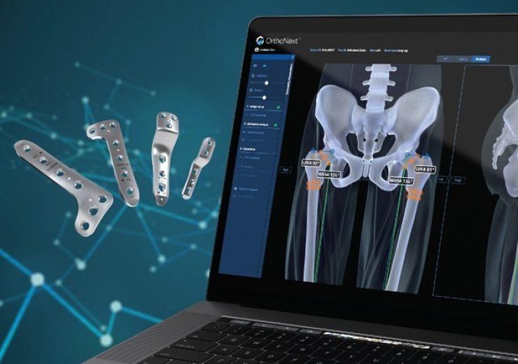 Orthofix announces FDA clearance of OrthoNext digital platform for JuniOrtho Plating System