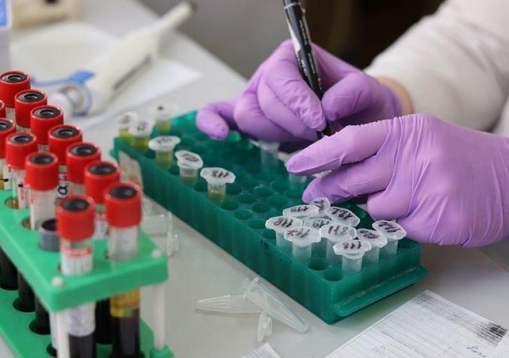 PerkinElmer to buy in-vitro diagnostics firm IDS for $155m