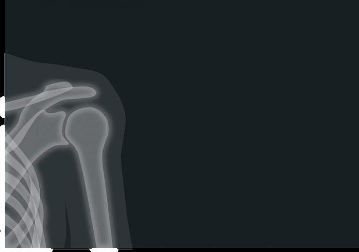 x-ray-1884888_640