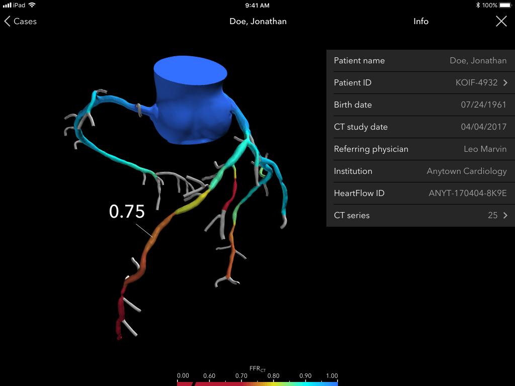 3d heart scan