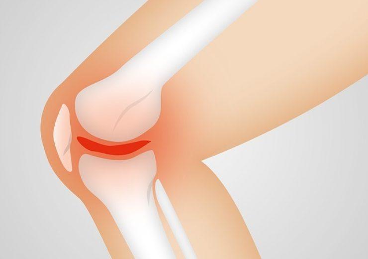 FDA approves CyMedica's IntelliHab system to treat knee osteoarthritis pain