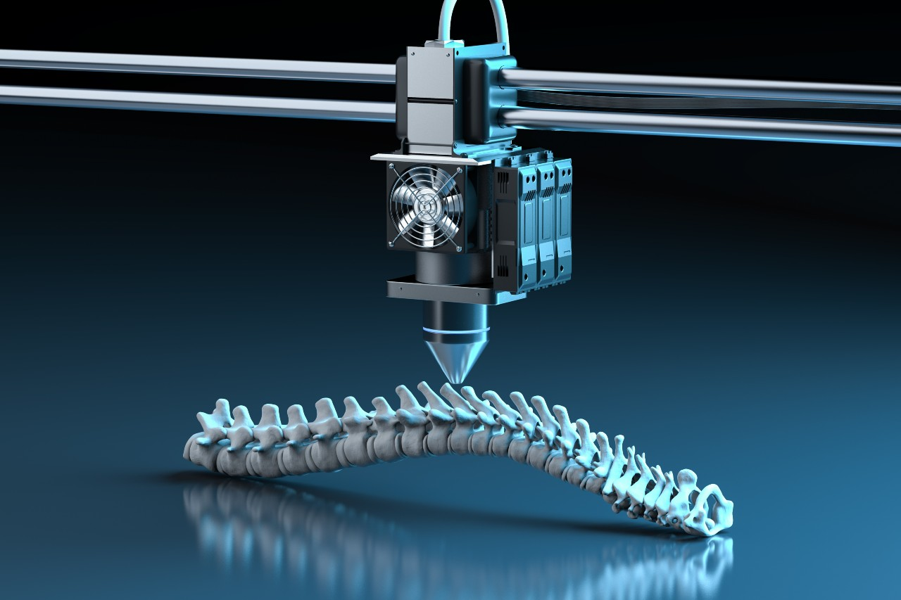 3D printing implants